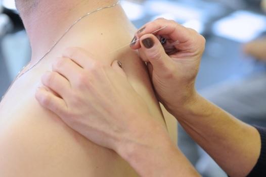 Châm cứu Đông phương y pháp chữa đau mỏi vai gáy