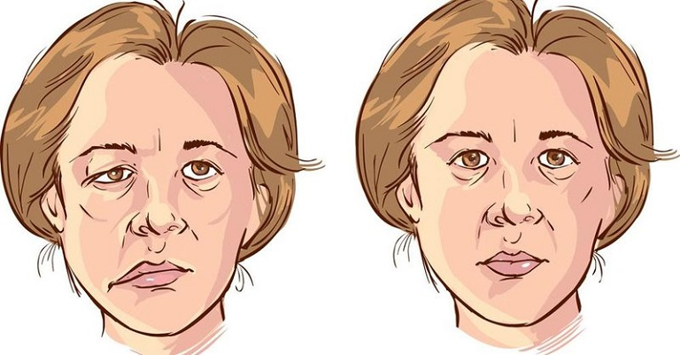 Méo mặt, méo miệng là triệu chứng điển hình