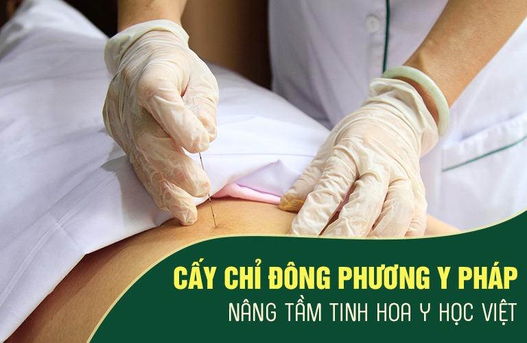 Trung tâm Đông phương Y pháp chữa xương khớp nhờ liệu pháp cấy chỉ