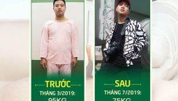 Hình ảnh trước và sau khi Trung cấy chỉ giảm cân tại Đông phương Y pháp