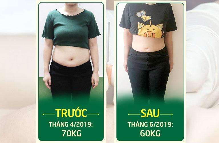 Ảnh trước - sau khi Nhung cấy chỉ giảm béo thành công tại Đông phương Y pháp
