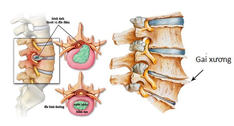 Gai xương ở L4 L5 có thể là hệ lụy của nhiều bệnh lý xương khớp khác