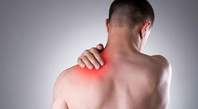 Bệnh đau vai gáy có thể được khắc phục hiệu quả bằng xoa bóp, bấm huyệt