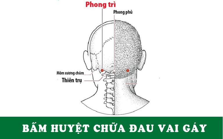 Các vị trí huyệt trị đau vai gáy