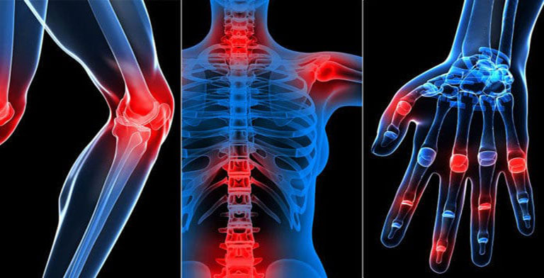 Thoái hóa khớp là căn bệnh phổ biến, thường gặp ở mọi đối tượng