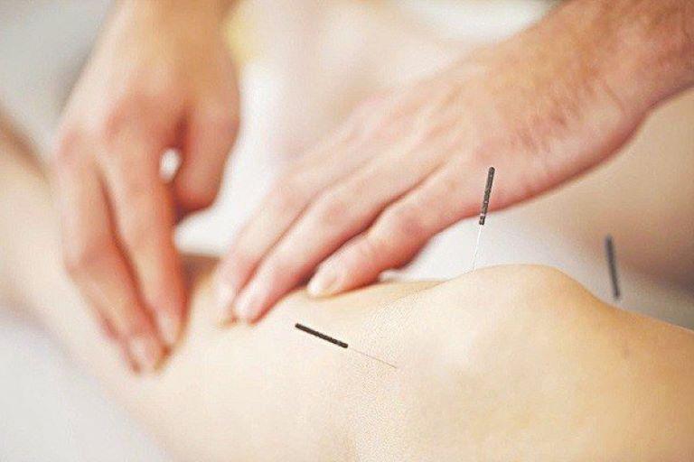 Châm cứu cần được thực hiện bởi chuyên gia có trình độ chuyên môn và với sự hợp tác của người bệnh