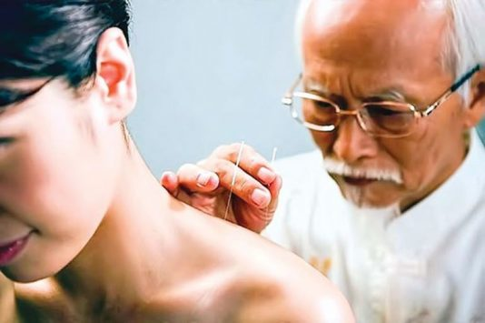 Châm cứu chữa đau vai gáy
