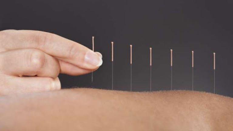 Phương pháp tác động bằng kim châm và hơ ngải nóng phát huy hiệu quả tốt trong việc giảm đau.