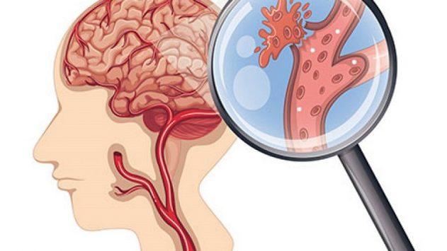 Đột quỵ: Triệu chứng, nguyên nhân và biện pháp phục hồi chức năng an toàn hiệu qu