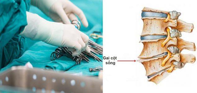 Phẫu thuật cắt bỏ gai xương cũng là một phương pháp khoa học được áp dụng