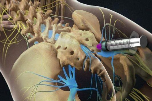 Thủy châm có tác dụng điều trị nhiều bệnh lý, đặc biệt là bệnh về xương khớp