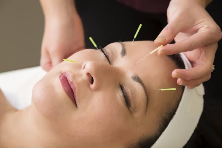 Châm cứu chữa mặt lệch mang lại hiệu quả điều trị cao