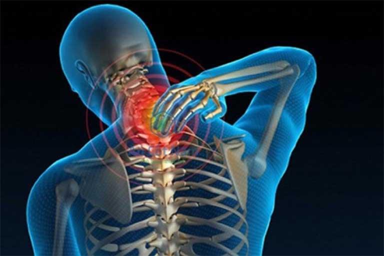 Bệnh thoái hóa cột sống cổ thường gây ra những biến chứng nguy hiểm