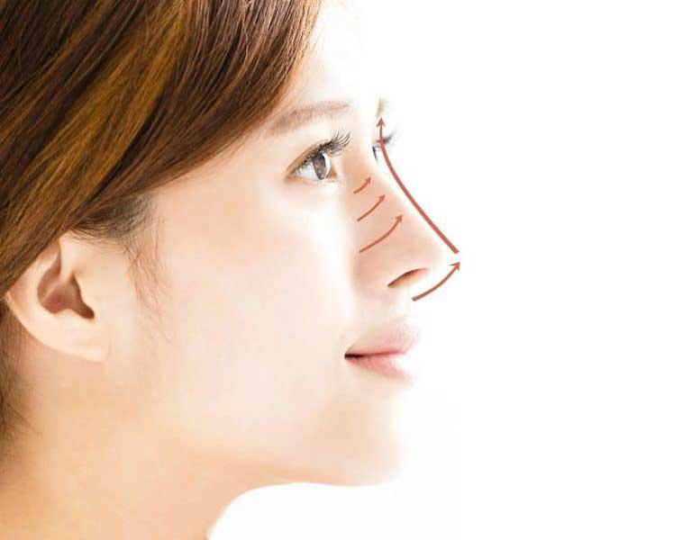 Việc thực hiện cấy chỉ nâng mũi collagen có thể được duy trì trong khoảng thời gian từ 8 tháng đến 12 tháng