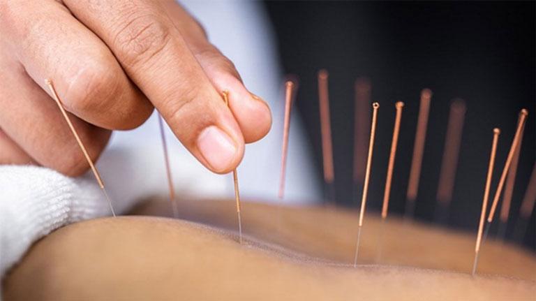 Tác dụng của châm cứu phục hồi chức năng