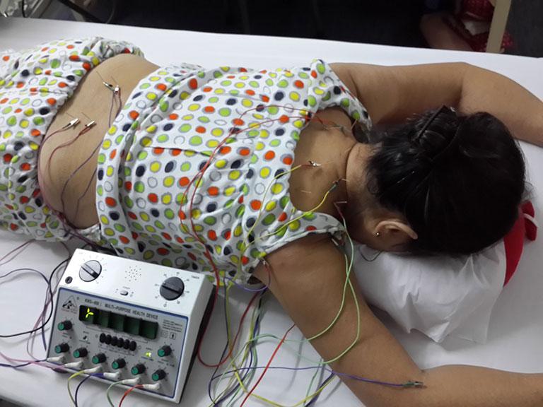 Châm cứu phục hồi chức năng phù hợp với những người chấn thương, đột quỵ, bại não