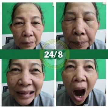 Hình ảnh cô Lá sau 3 buổi điều trị liệt dây thần kinh số 7 (phục hồi 90%)