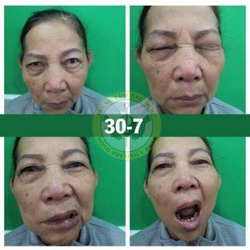 Hình ảnh cô Lá sau 3 buổi điều trị tại Đông phương Y pháp [Vùng miệng: đã hồi phục 65%, Vùng mắt và trán: đã hồi phục 90%]