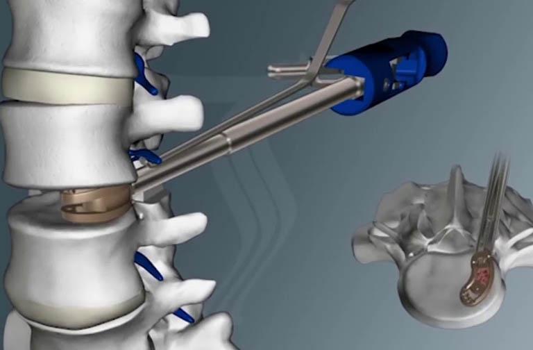 Đĩa đệm nhân tạo được phẫu thuật đặt vào thay đĩa đệm bình thường