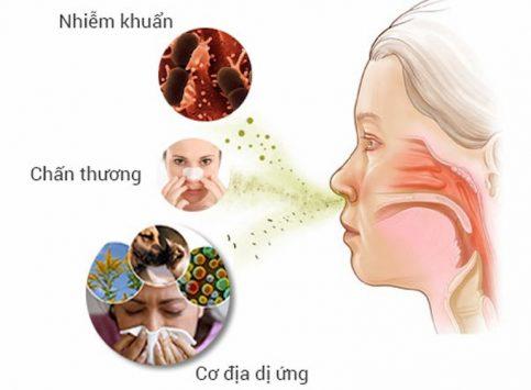 Một số nguyên nhân gây viêm mũi dị ứng