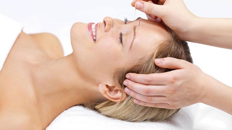 Phương pháp châm cứu da mặt