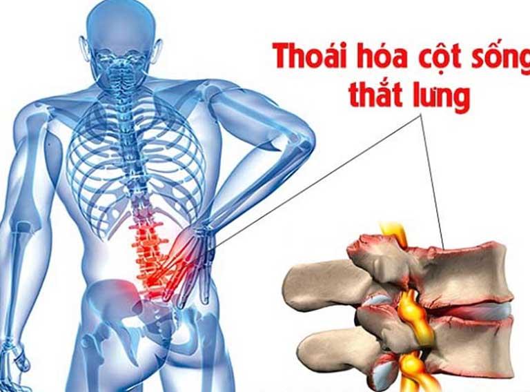 Thoái hóa cột sống là một trong những nguyên nhân phổ biến gây ra đau nhức xương sống lưng