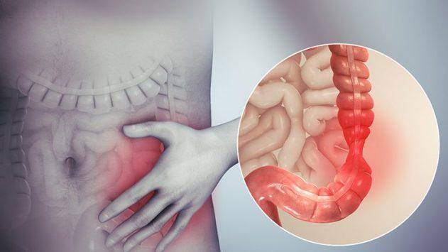Viêm đại tràng có nguy hiểm không? Truy tìm nguyên nhân, triệu chứng và giải pháp điều trị tốt nhất