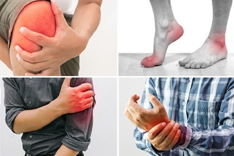 Viêm khớp là căn bệnh phổ biến ở mọi lứa tuổi