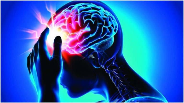 Hình minh họa bệnh tai biến mạch máu não