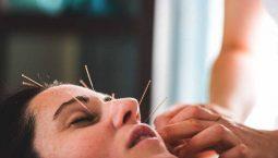 Châm cứu chữa méo miệng mang lại hiệu quả cao