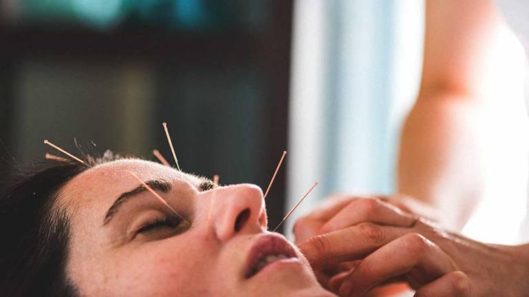 Châm cứu mắt - Phương pháp trị bệnh mang lại nhiều hiệu quả