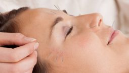 Châm cứu chữa mặt lệch: Phương pháp trị liệu tốn thời gian nhưng mang lại hiệu quả cao