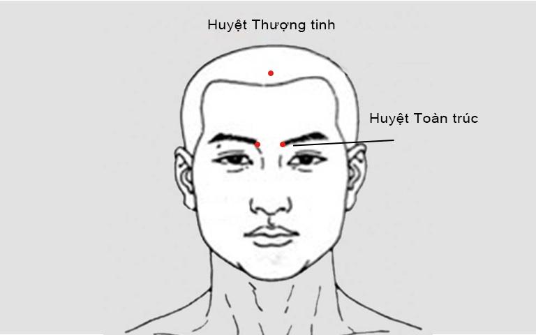 Huyệt Thượng tinh và Toàn trúc trị ngạt mũi