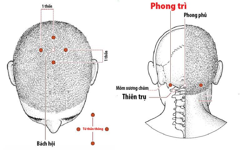 Các huyệt trị tai biến vùng đầu cổ