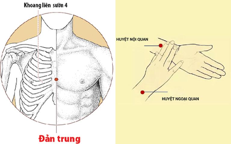 Bấm huyệt Đản trung và Nội quan trị tức ngực khó thở