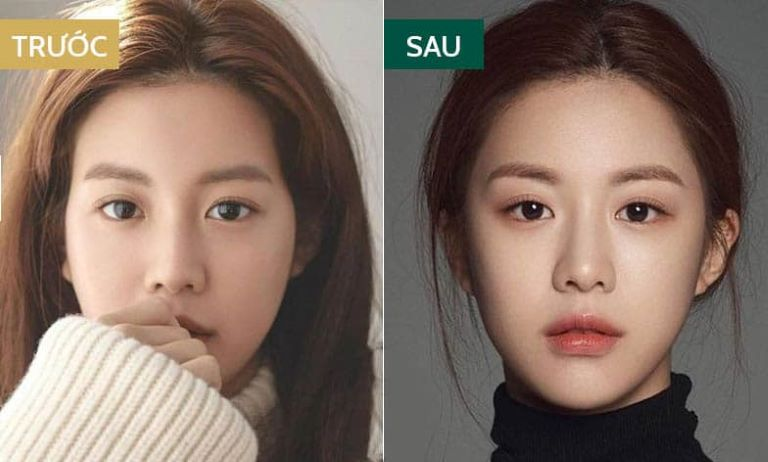 Sự khác biệt giữa khuôn mặt bị hóp thái dương và có thái dương đầy đặn