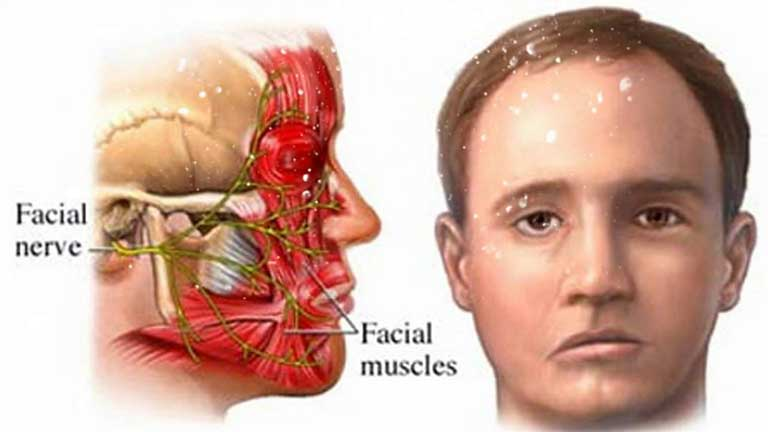 Các huyệt đạo châm cứu méo miệng