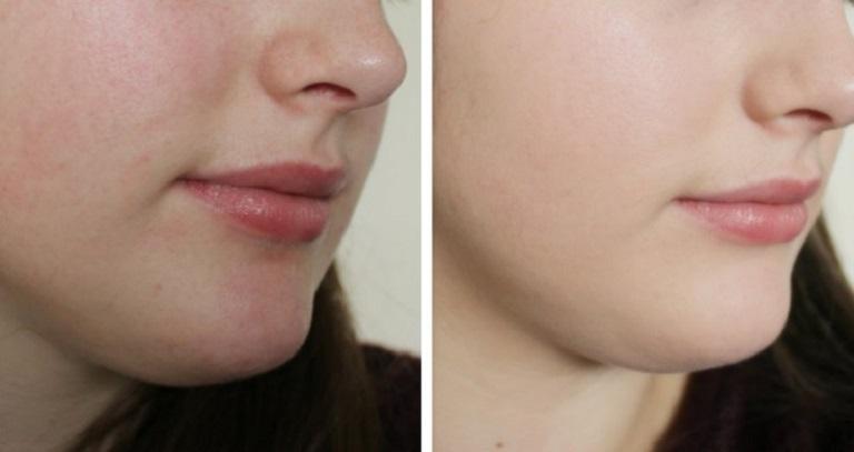 Một người có làn da mỏng có thể quan sát trực tiếp và nó có thể xảy ra ở cả đàn ông và phụ nữ, ở bất kì độ tuổi nào