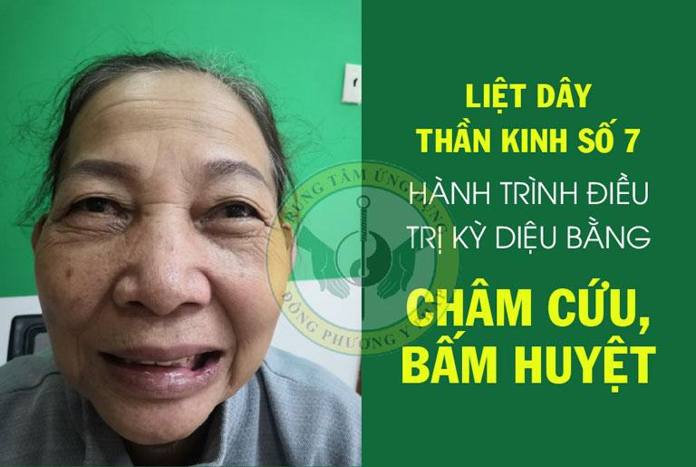 Cô Đỗ Thị Lá với hành trình chữa liệt dây thần kinh số 7 tại Trung tâm Đông phương Y pháp