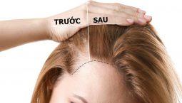 Kích thích mọc tóc: Mái tóc chắc khỏe - mọc nhanh - dày hiệu quả nhất, không cần dùng thuốc