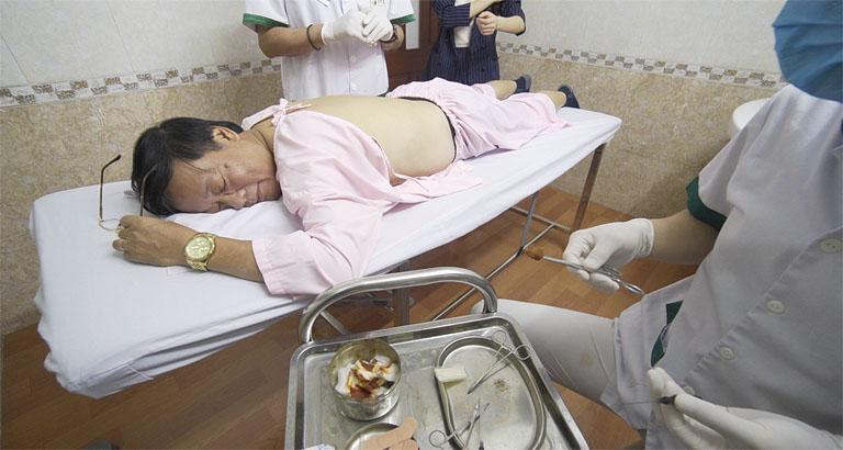 Nghệ sĩ Phú Thăng trong quá trình cấy chỉ tại Đông Phương Y Pháp