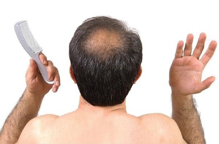 Những dấu hiệu cảnh báo rụng tóc bạn cần chú ý