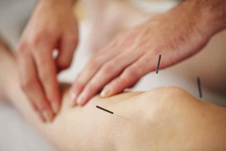 Hiệu quả của phương pháp châm cứu chân