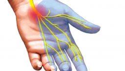 Hình minh họa hội chứng ống cổ tay