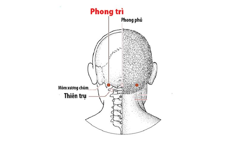 Vị trí huyệt Phong Trì