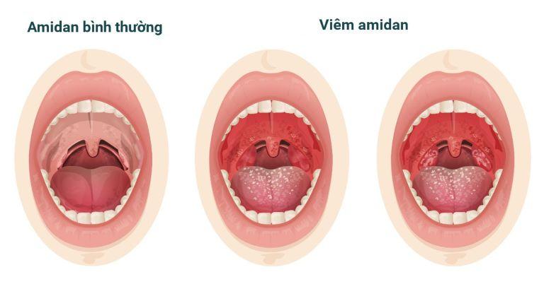 Xoa bóp bấm huyệt là biện pháp rất hiệu quả để cải thiện các triệu chứng viêm amidan