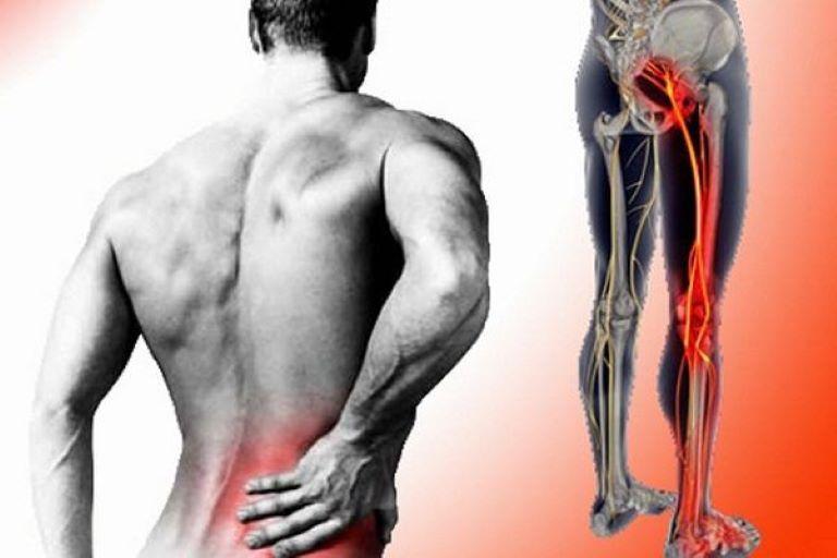 Đau thần kinh tọa biểu hiện với triệu chứng đau dọc theo đường đi của dây thần kinh chạy từ thắt lưng xuống bàn chân