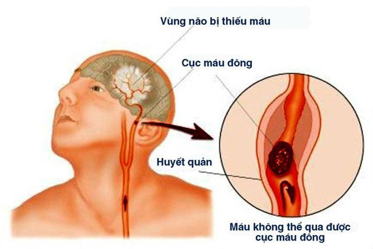Nhồi máu não là một trong những biến chứng của huyết áp