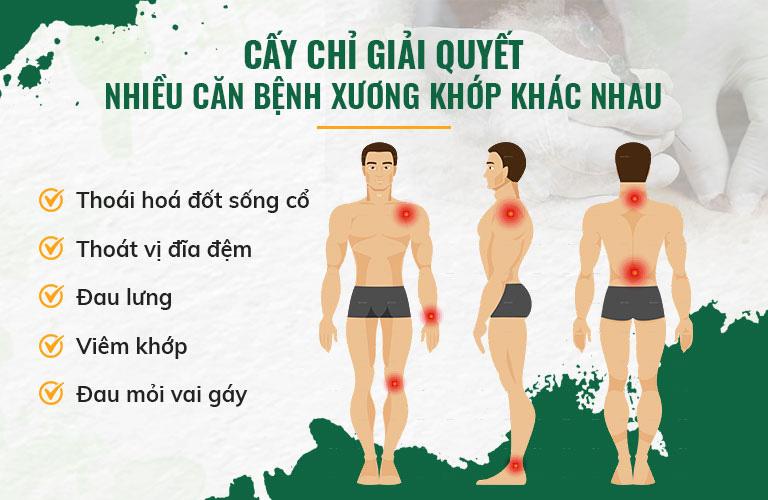 Liệu pháp cấy chỉ chữa được nhiều chứng bệnh khác nhau