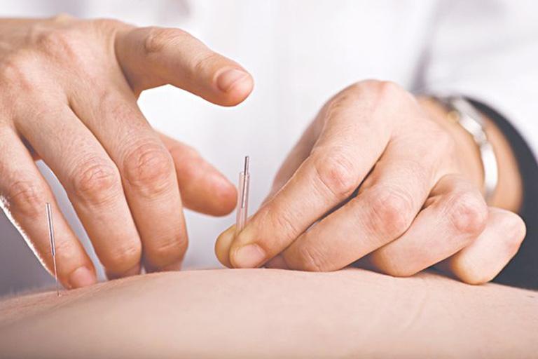 Cấy chỉ chữa đau vai gáy phải được thực hiện theo quy chuẩn chung